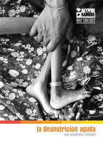 La desnutrición aguda: Una pandemia evitable